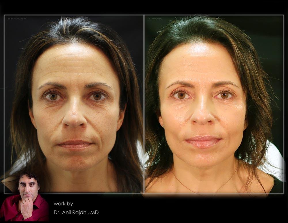 PlasmaSculpt-Sculptra-PRF-Collagen-Fillers-Natural-Before-After-125-RajaniMD