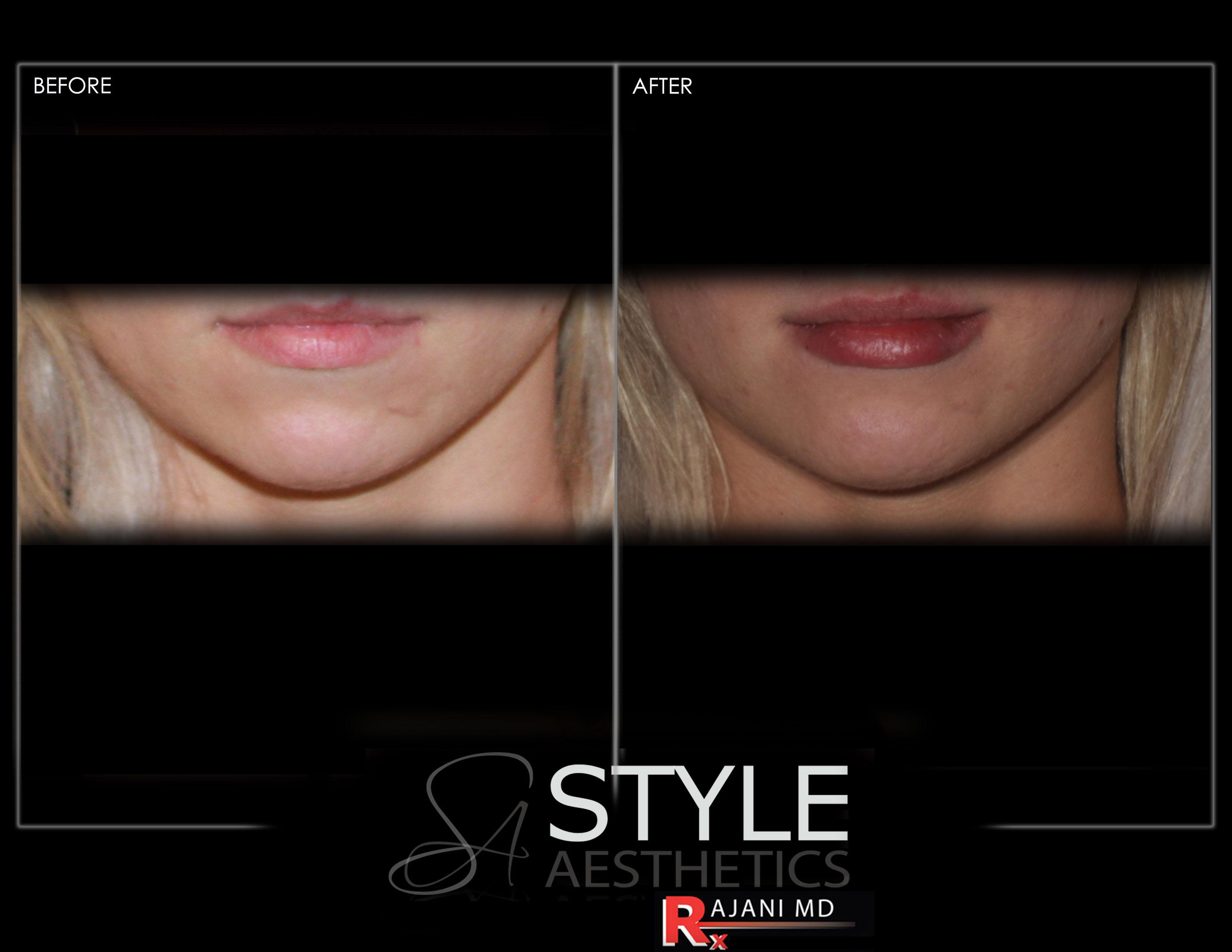 Lips, Lip Filler, Juvederm, Restylane