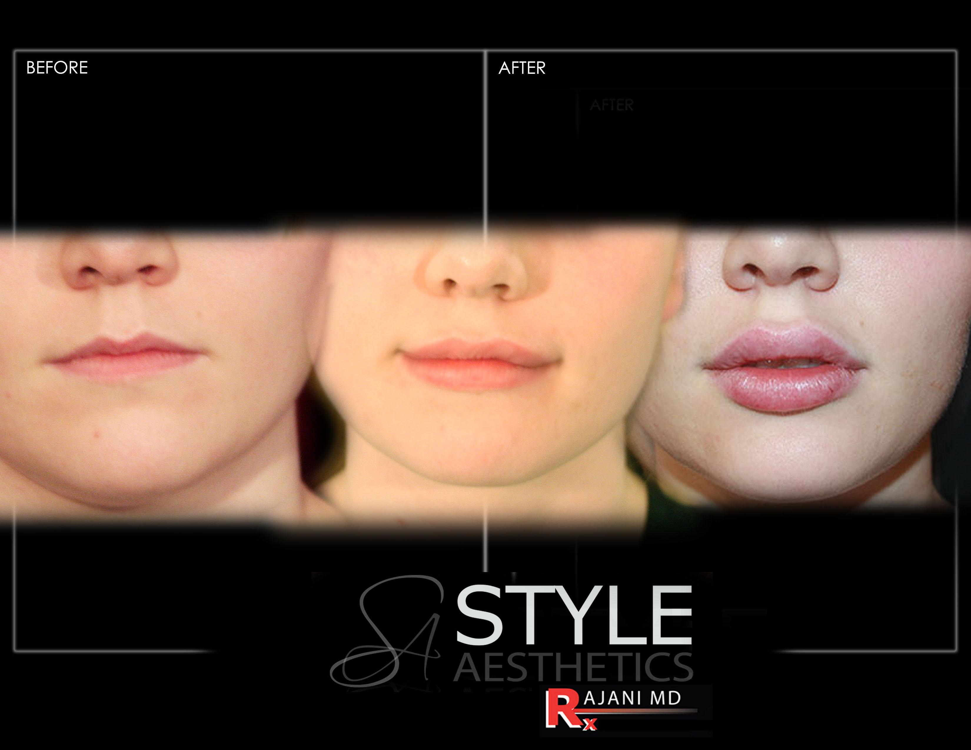 Lip-Augmentation-Filler-Progression-Before-After-Photos-Portland-Oregon-0435