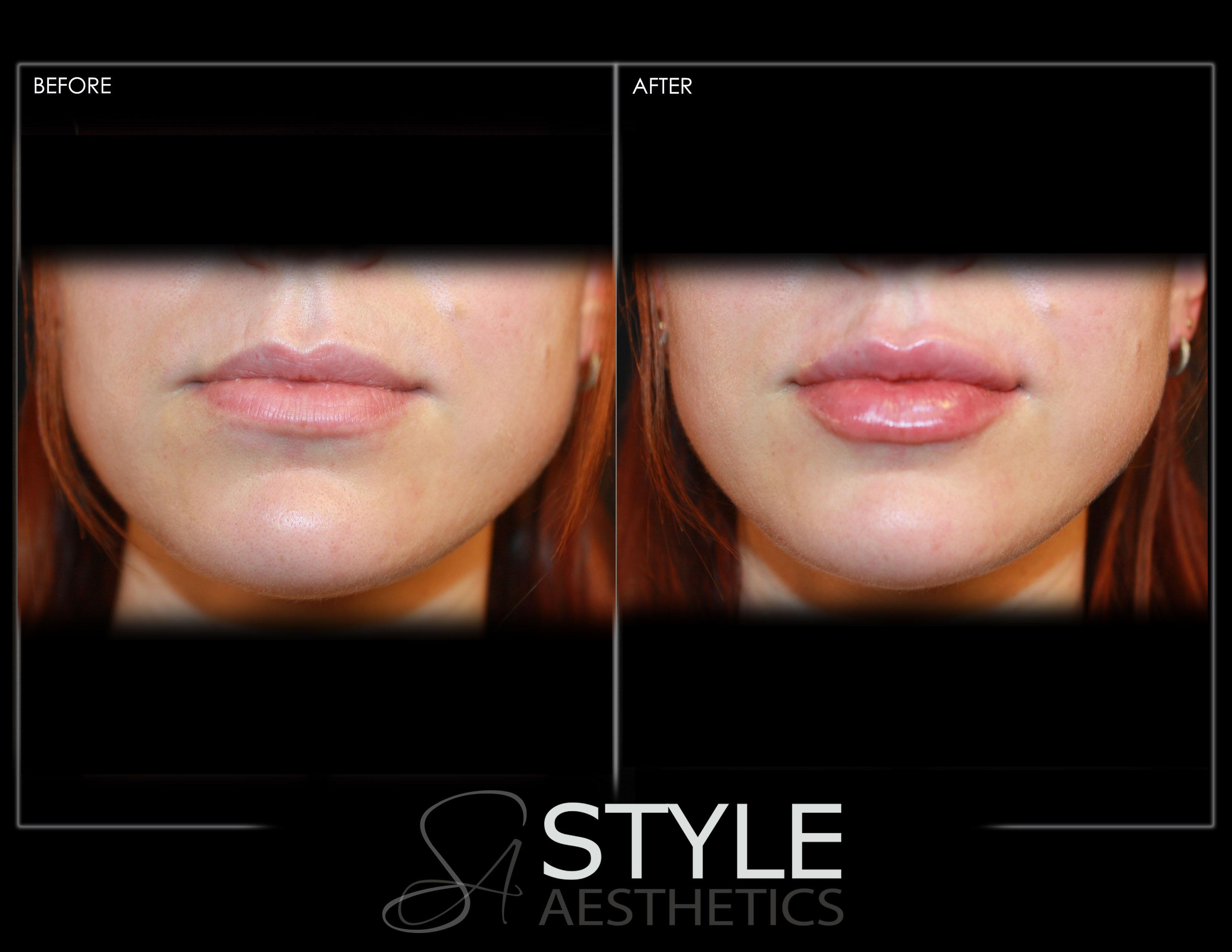Lip-Augmentation-Filler-Before-After-Photos-Portland-Oregon-0438