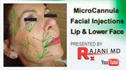 Videos-MicroCannula-Facial-Injections-Lip-Lower-Face-Rajani-Portland-Oregon.jpg