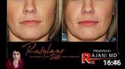 Restylane-Silk-Injected-Explained-Rajani-Portland-Oregon