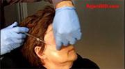 Voluma- Dr Rajani injects- Dermasculpt Microcannula- Before-After-Rajani Portland Oregon