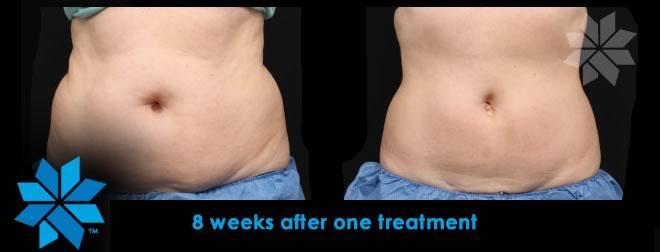 CoolSculpting, DualSculpting, Fat Removal, Liposuction Alternative