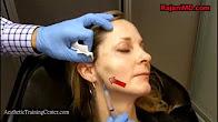 Videos-Sculptra-PDO-Threads-Botox-Combined-Rajani-Portland-Oregon