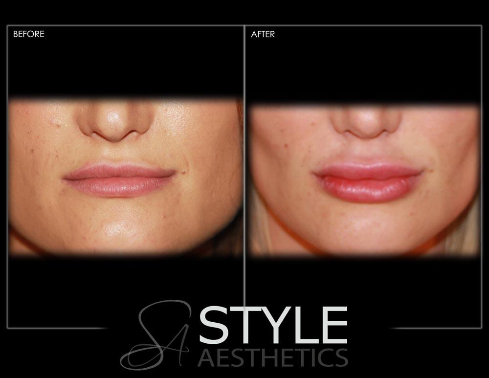 Lip-Augmentation-Filler-Before-After-Photos-Portland-Oregon-0420