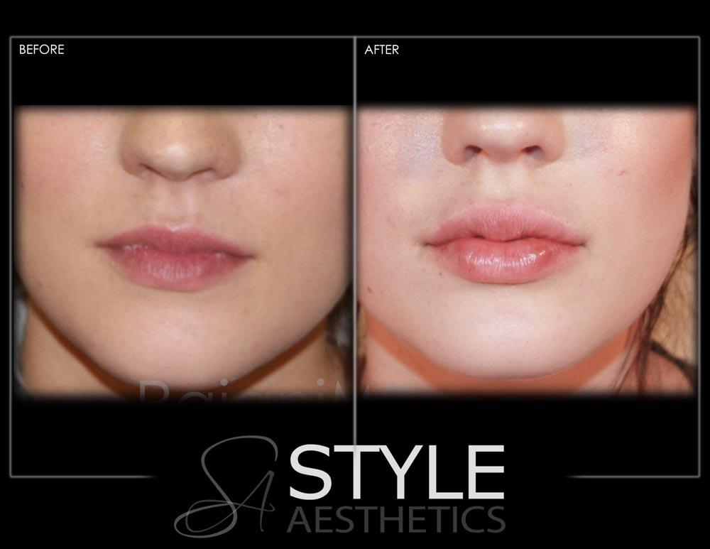 Lip-Augmentation-Filler-Before-After-Photos-Portland-Oregon-0421