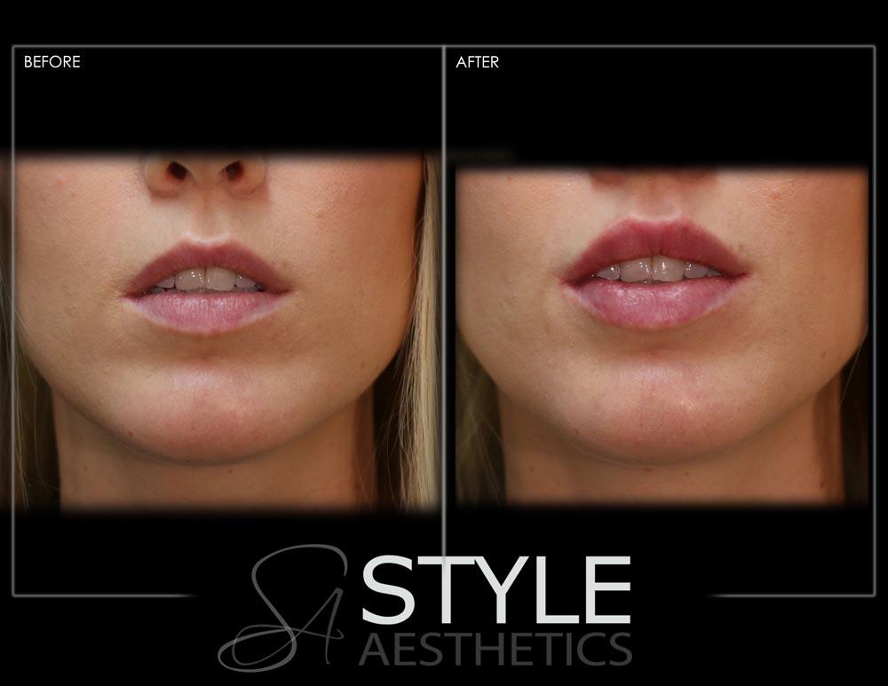 Lip-Augmentation-Filler-Before-After-Photos-Portland-Oregon-0422