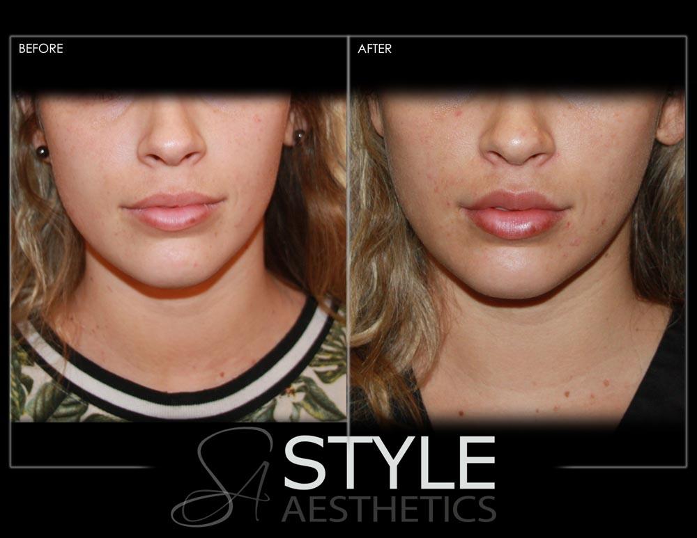 Lip-Augmentation-Filler-Before-After-Photos-Portland-Oregon-0425