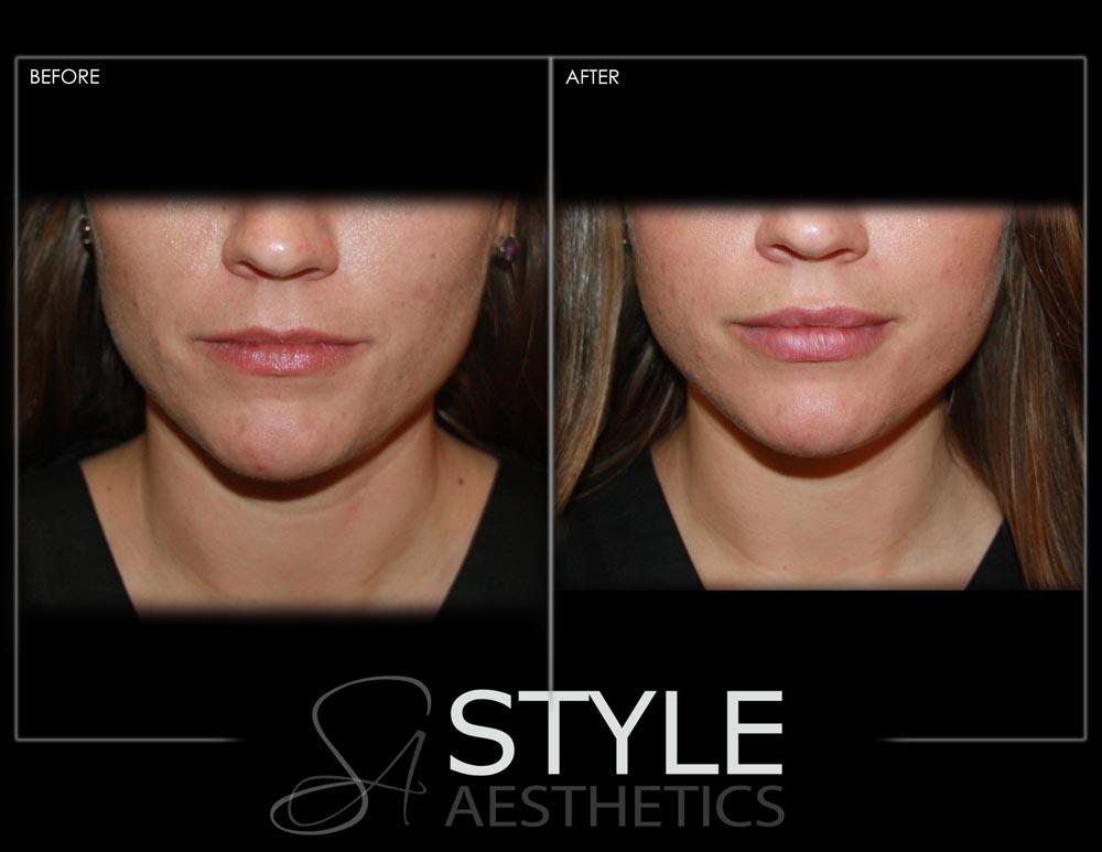 Lip-Augmentation-Filler-Before-After-Photos-Portland-Oregon-0427