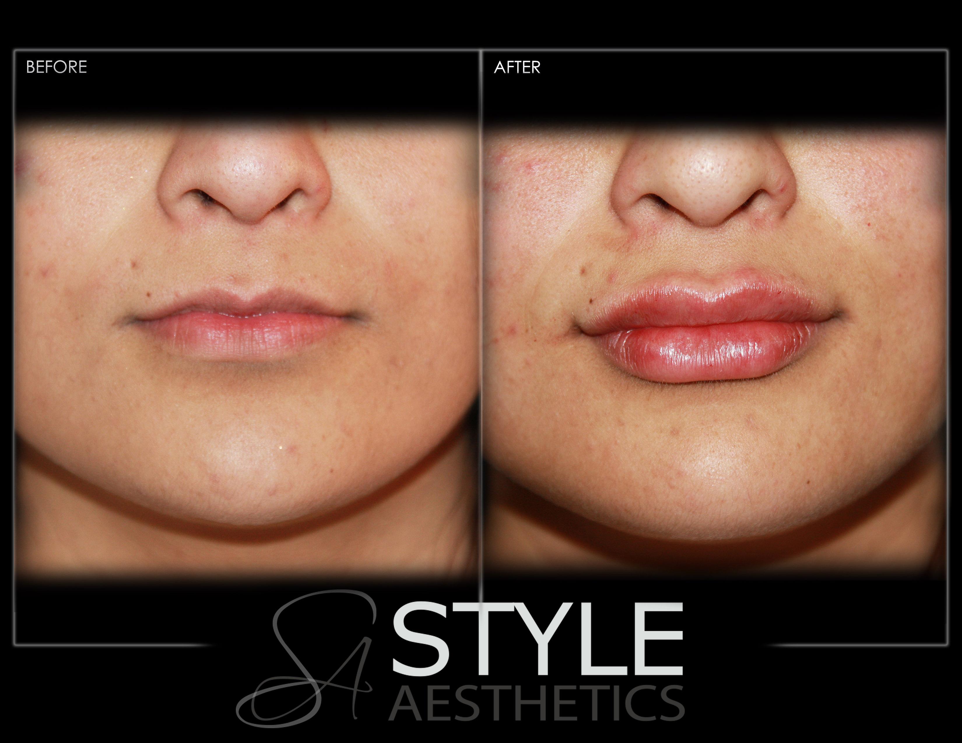 Lip-Augmentation-BigLiips-Filler-Before-After-Photos-Portland-Oregon-0606