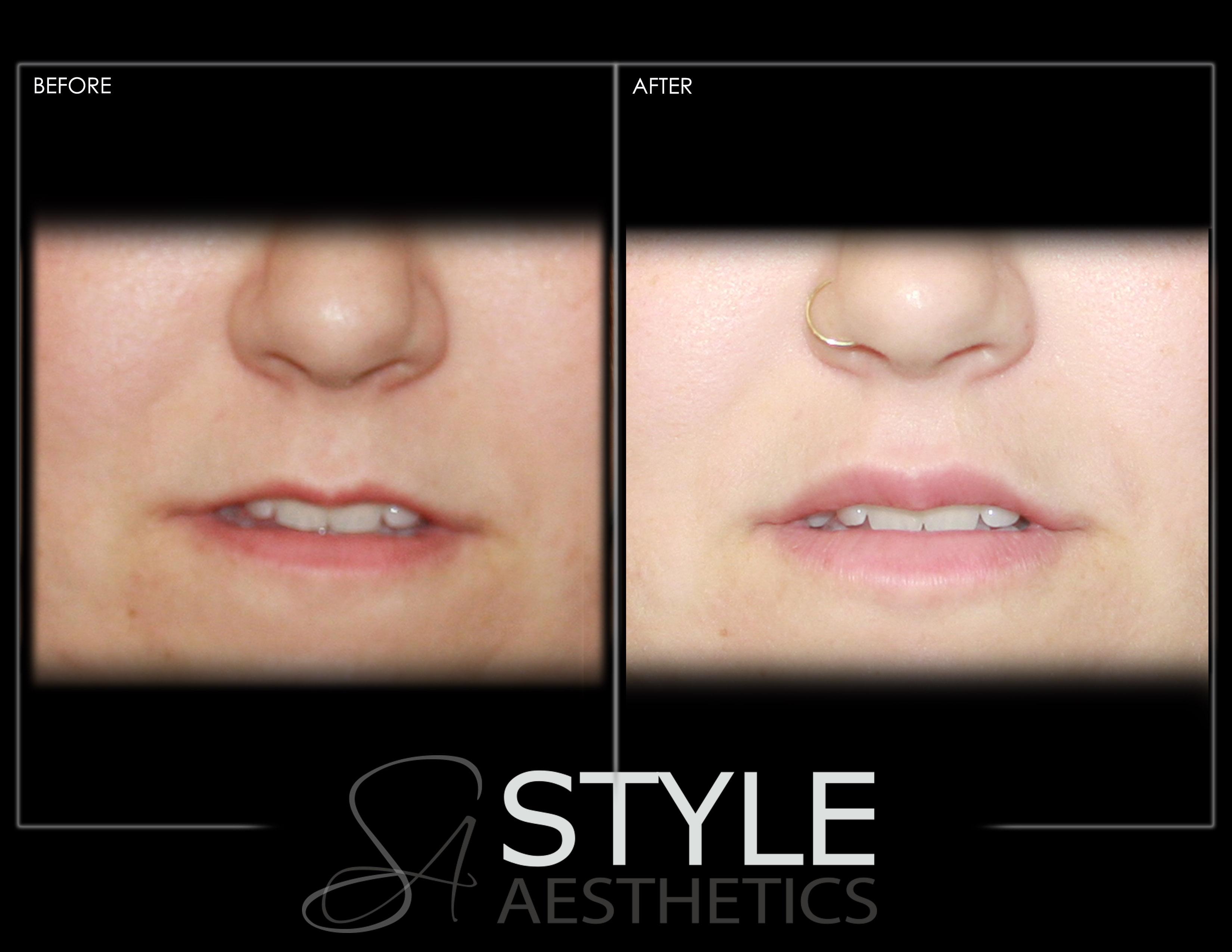 Lip-Augmentation-Filler-Before-After-Photos-Portland-Oregon-0429