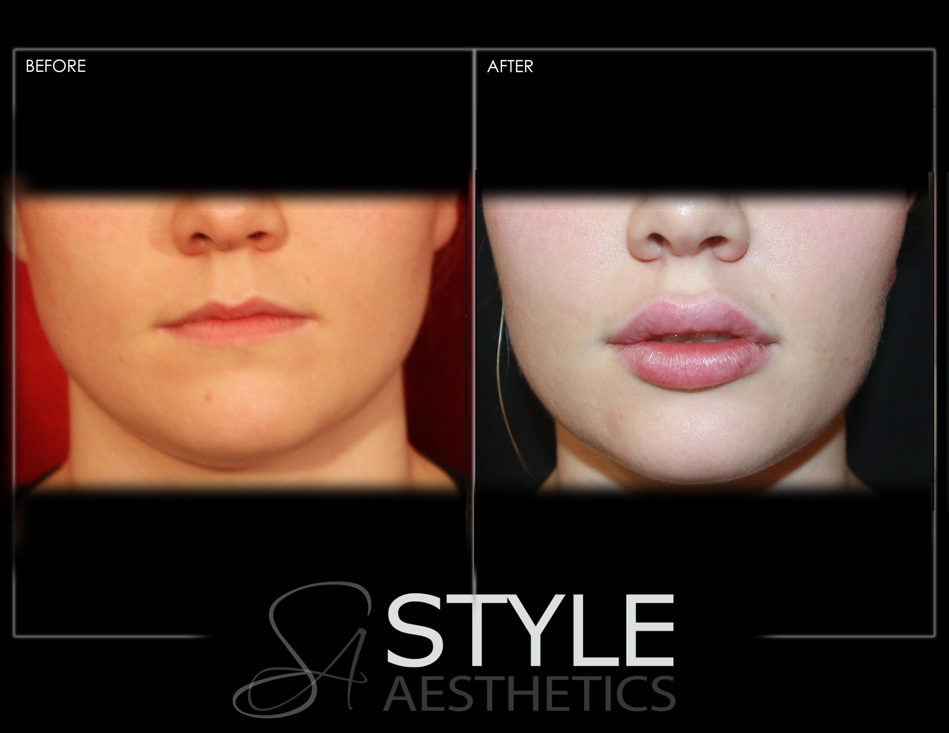 Lip-Augmentation-Filler-Before-After-Photos-Portland-Oregon-0430