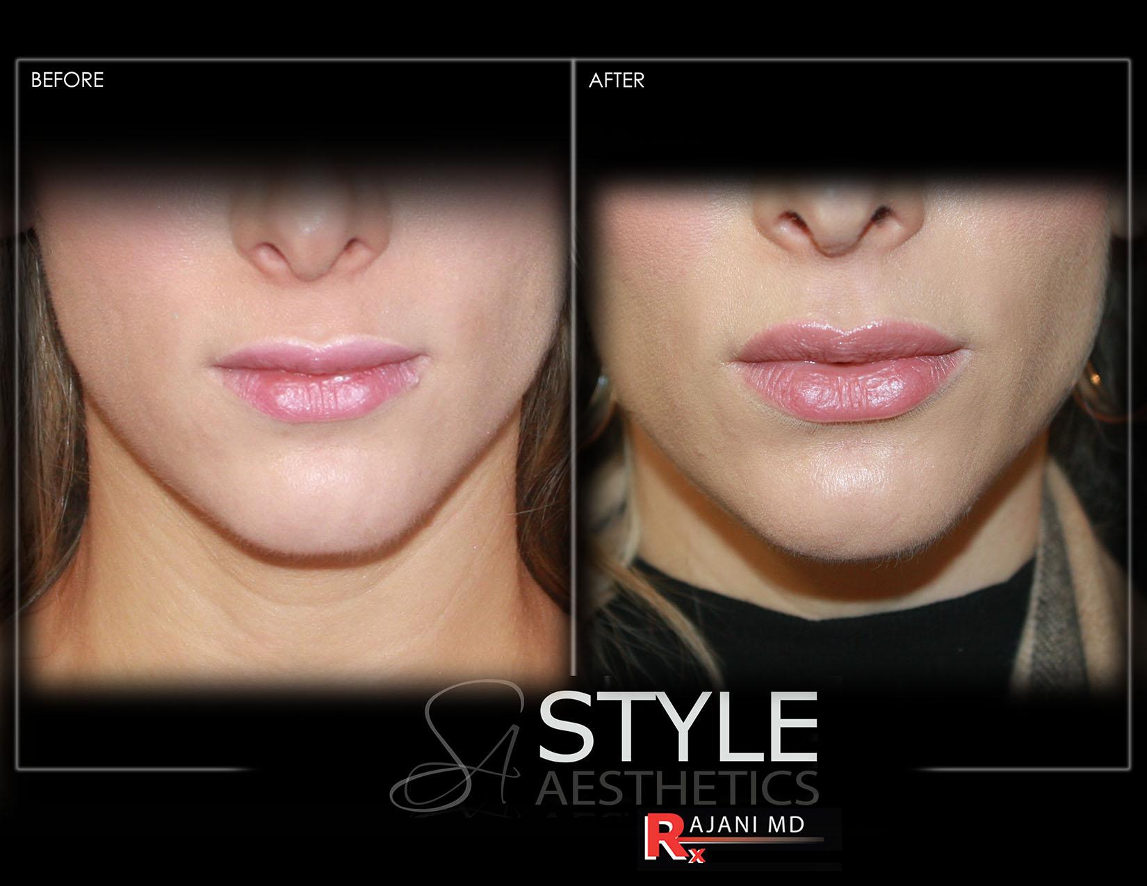 Lip-Augmentation-Filler-Before-After-Photos-Portland-Oregon-0433sm