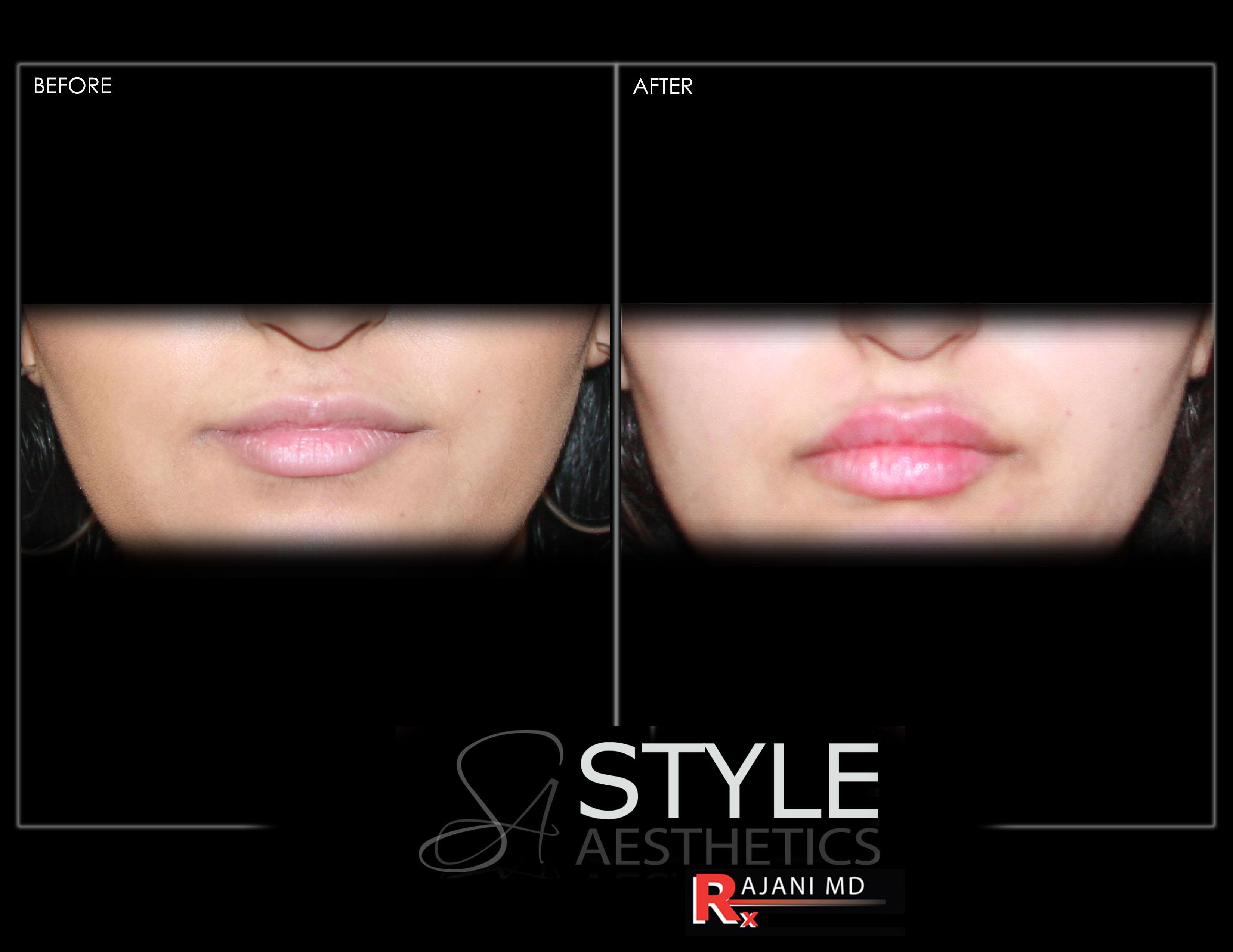 lips, lip filler, lip augmentation, juvederm, restylane, portland, oregon