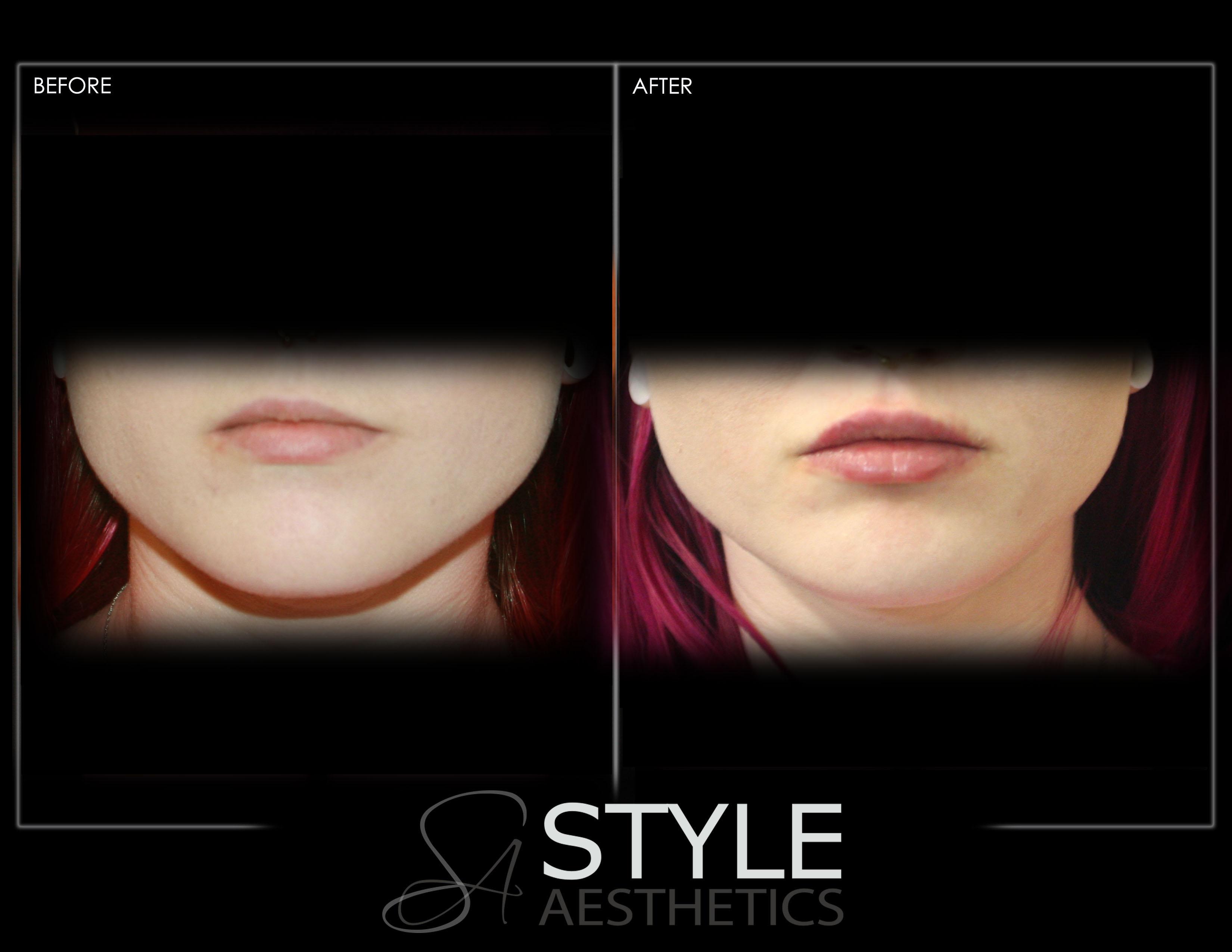 lips, lip filler, lip augmentation, juvederm, restylane, portland, oregon, fullerlips, juvedermportland, pearlportland