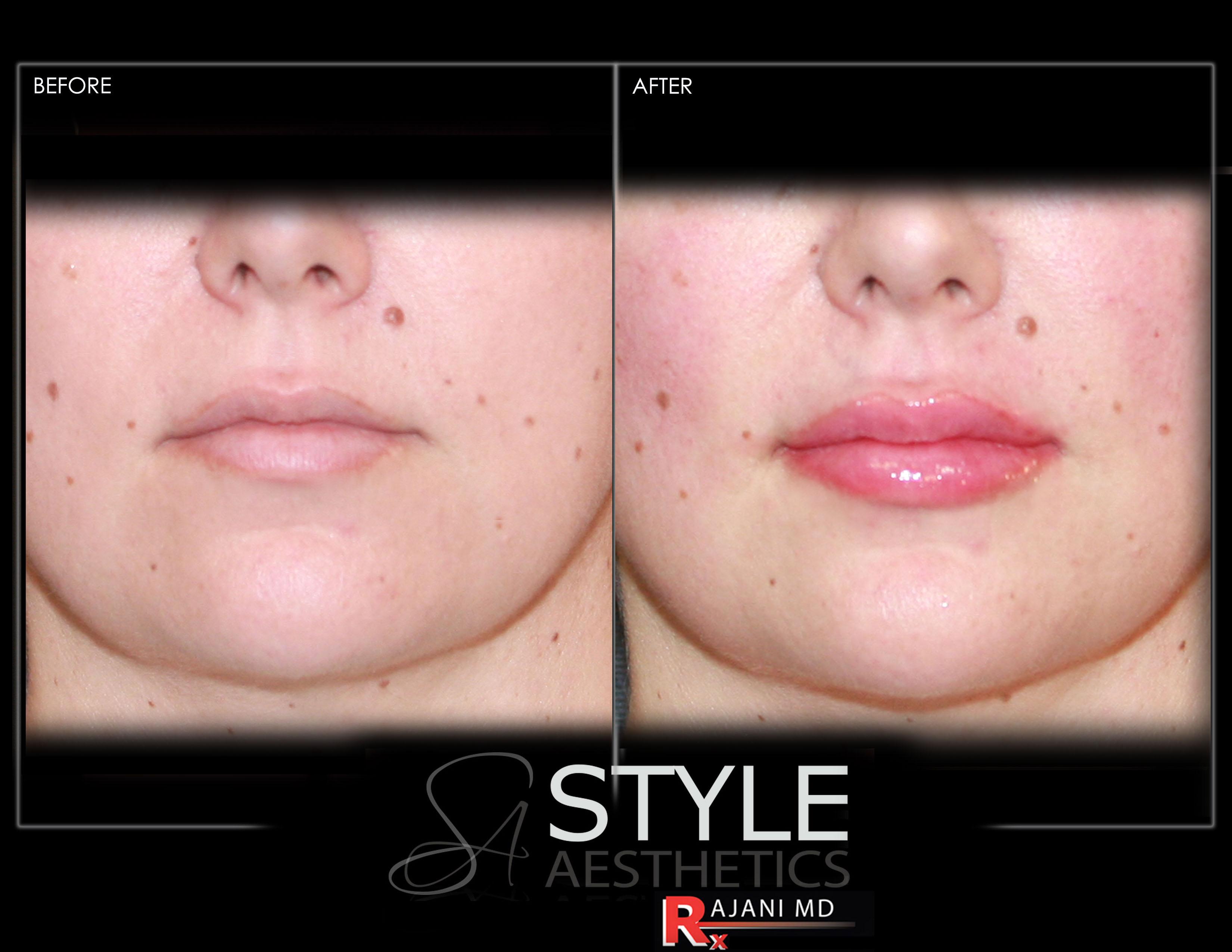 Lip-Augmentation-Filler-Before-After-Photos-Portland-Oregon-0444