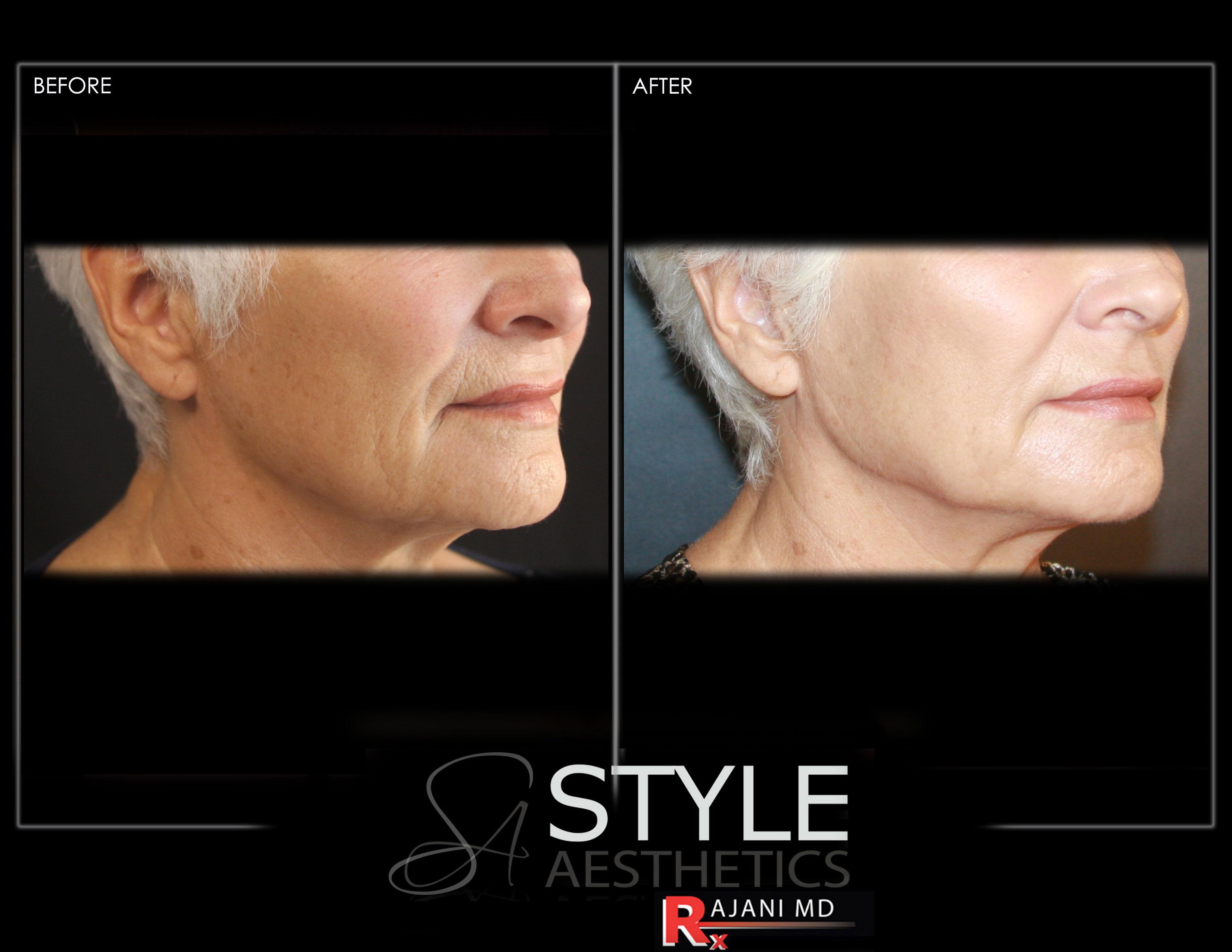 VFR Skin Treatments by RajaniMD