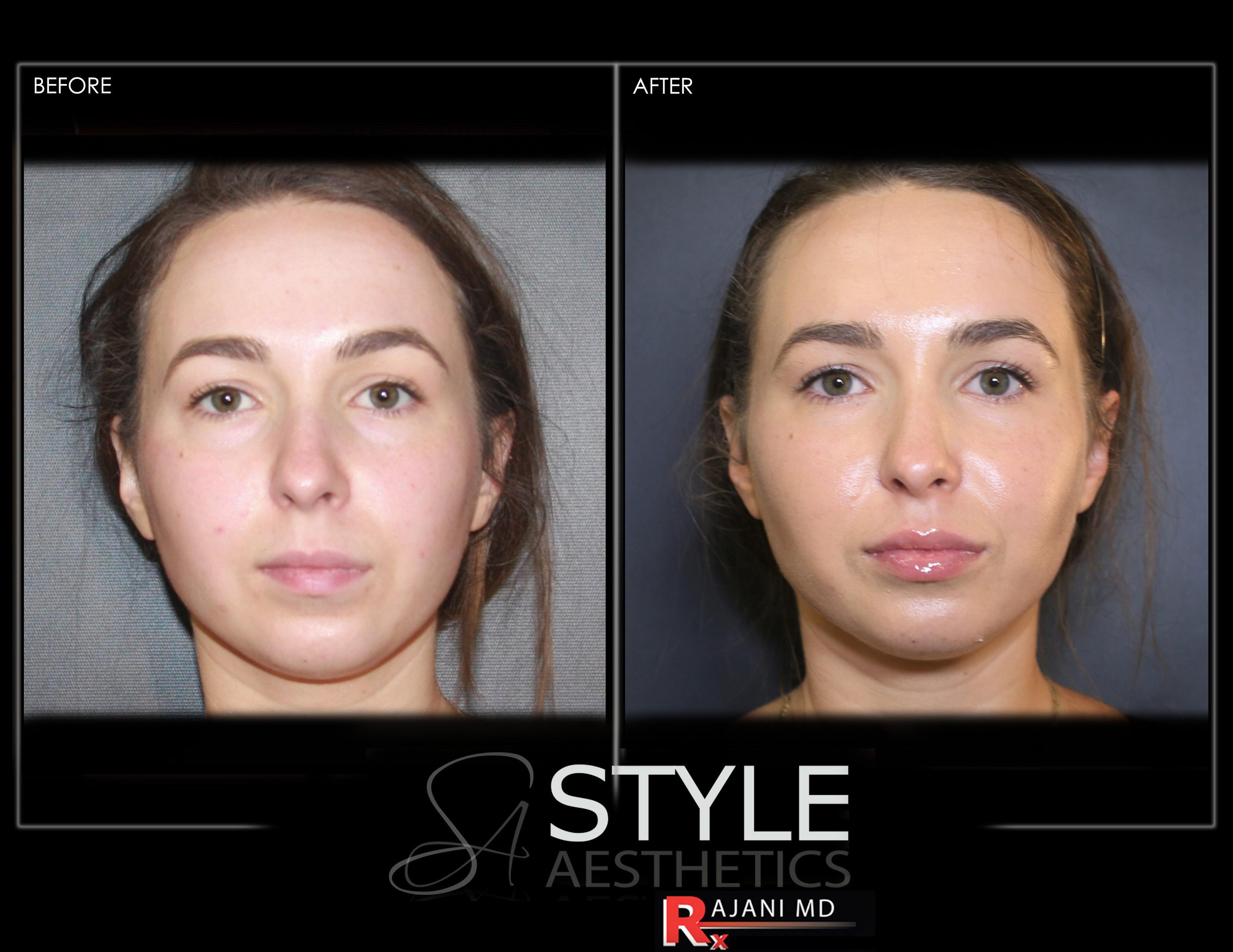 Cheek Filler Augmentation Natural Results