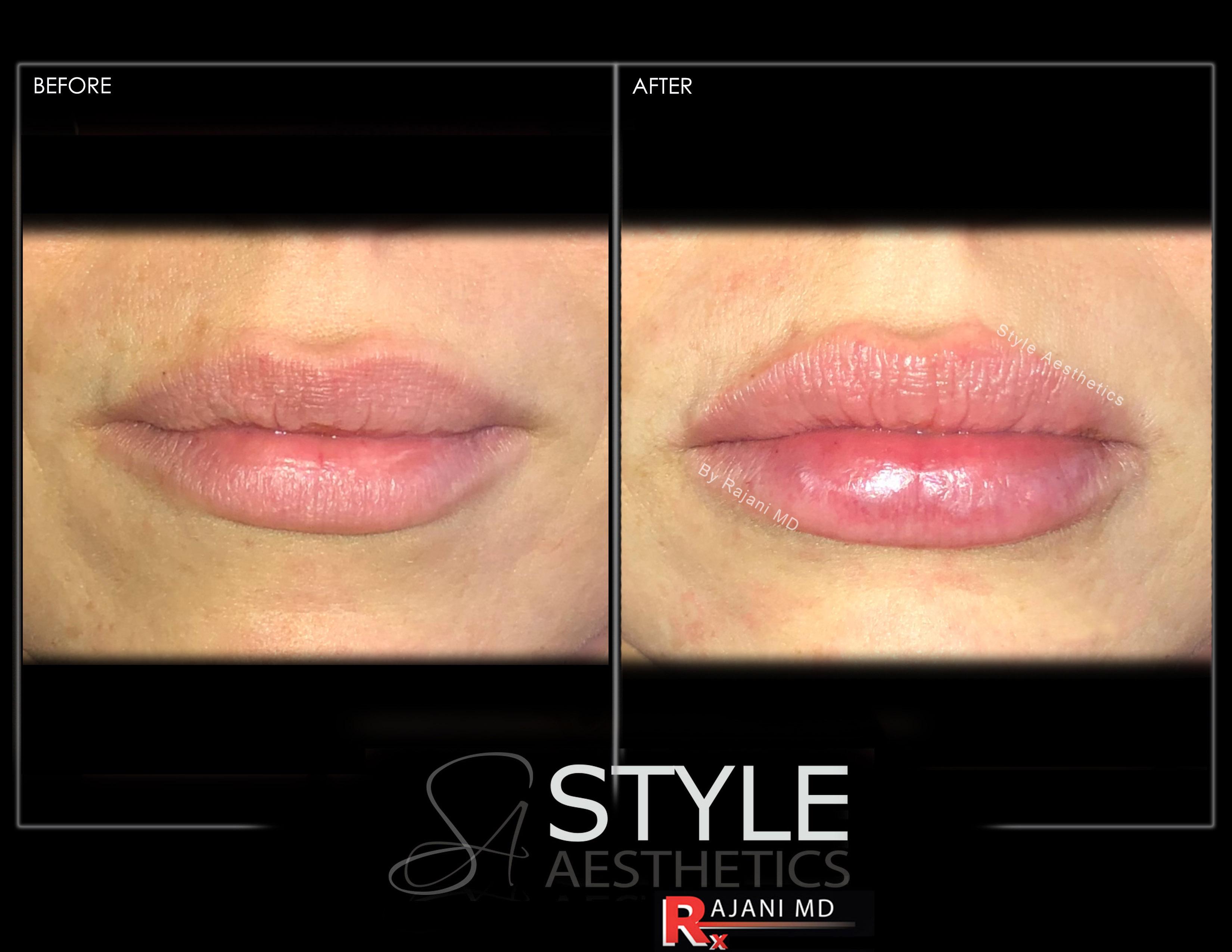 Lip Filler Augmentation for Bigger Fuller Lips