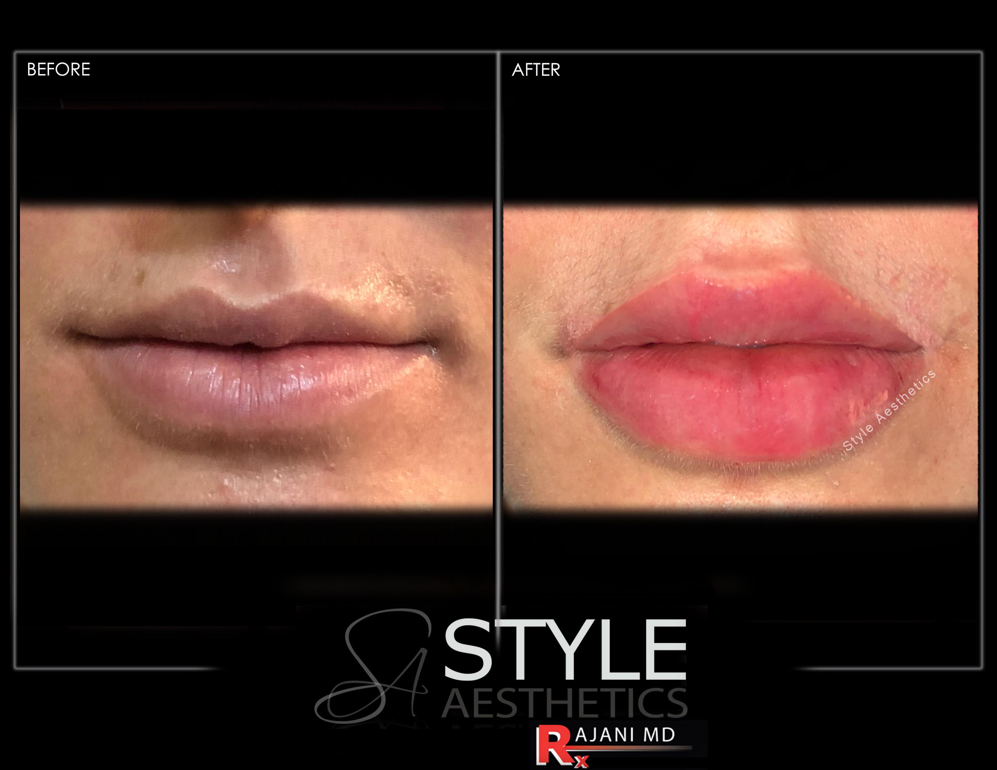Juvederm Lip Filler for Bigger Fuller Lips
