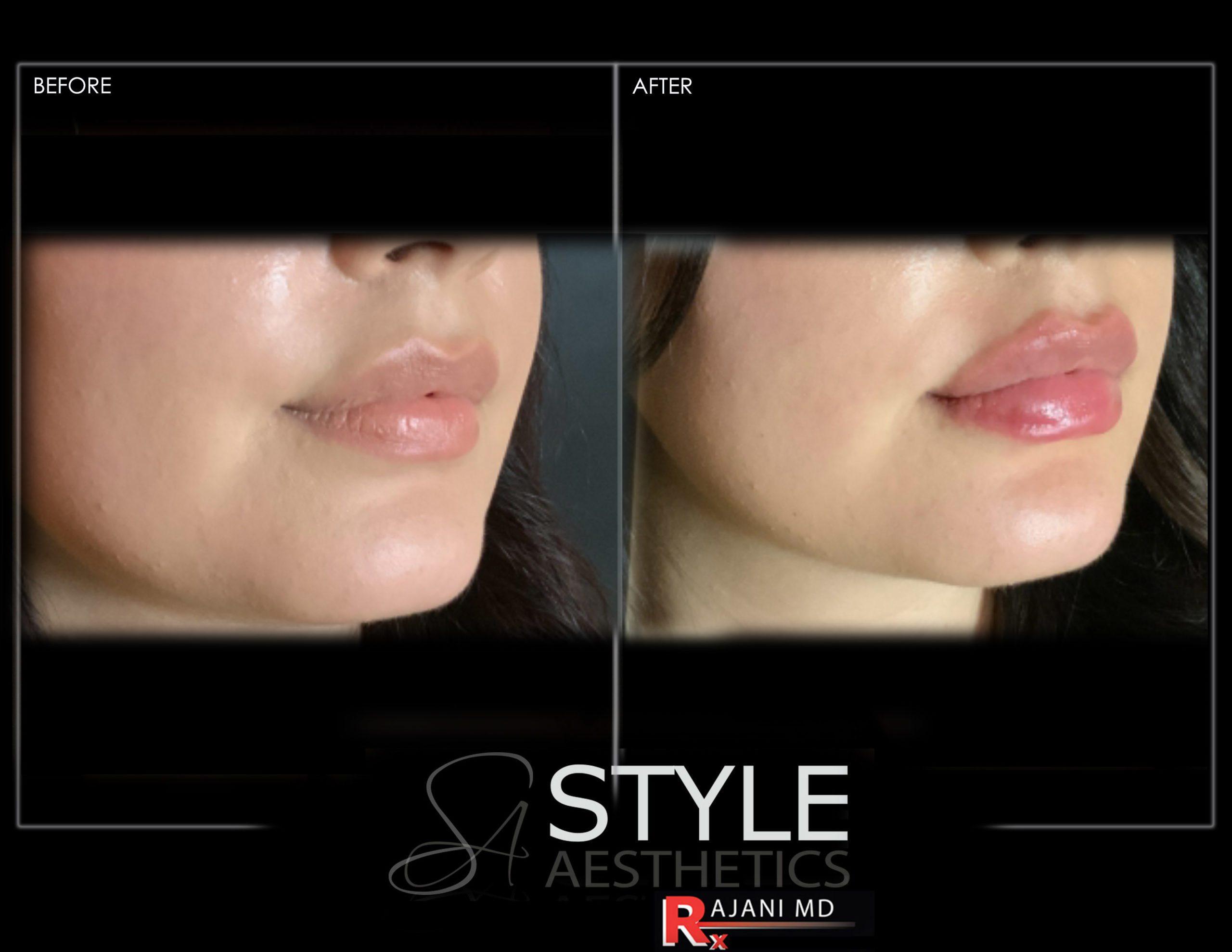 Lip Procedures and Enhancements by RajaniMD