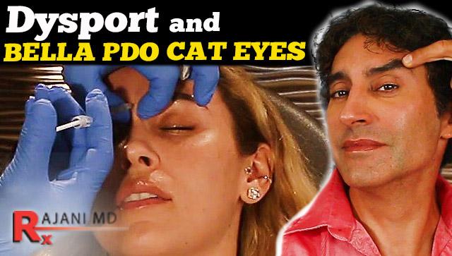 PDO-Cateye-Thread-Lift