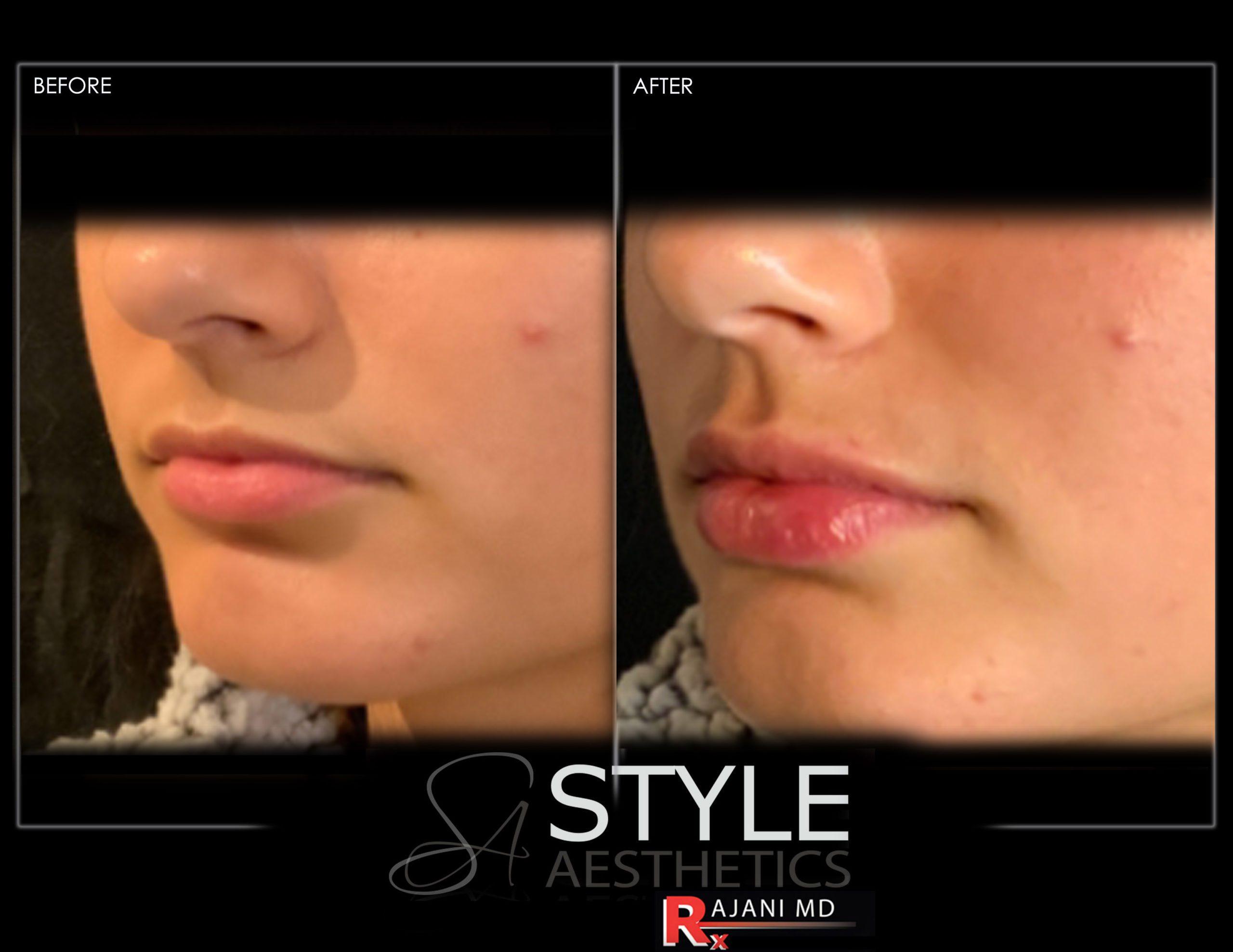 Lip Filler Lips Augmentation Before and After Natural Look Portland Oregon Juvederm Restylane Kysse