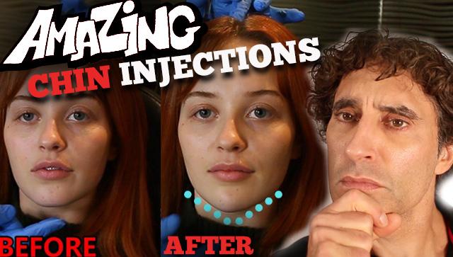 YouTube-CHIN-Injections-Filler-Rajani-Portland-Oregon